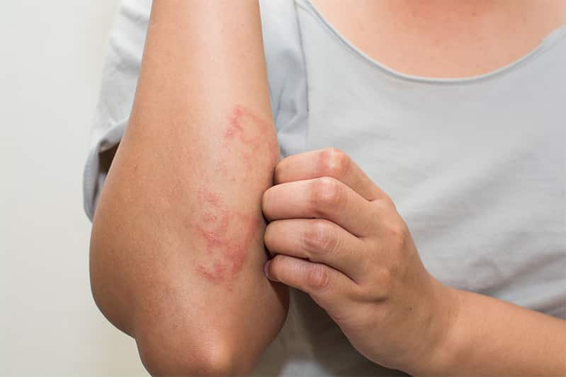 Woman with eczema on elbow