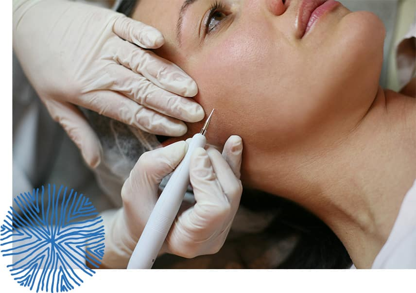 woman gets needle in cheek