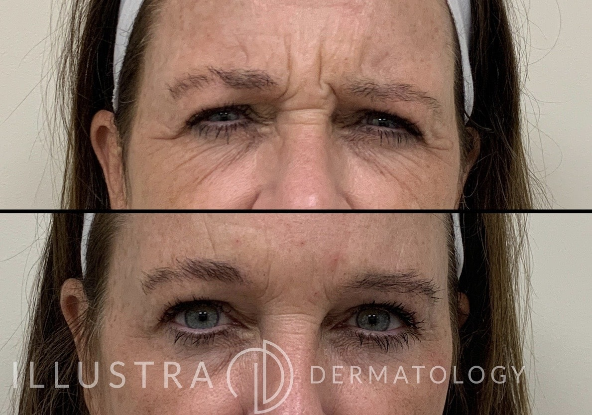 Before and After Wrinkle Relaxer