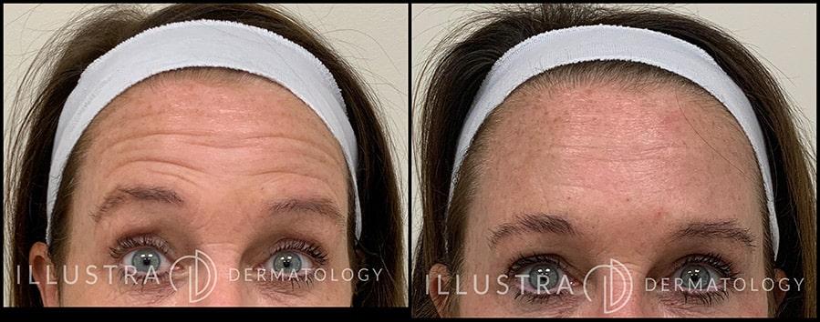 botox face treatments
